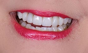 after dental treatment in Silver Spring, Maryland