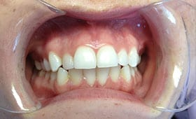 before dental treatment in Silver Spring, Maryland