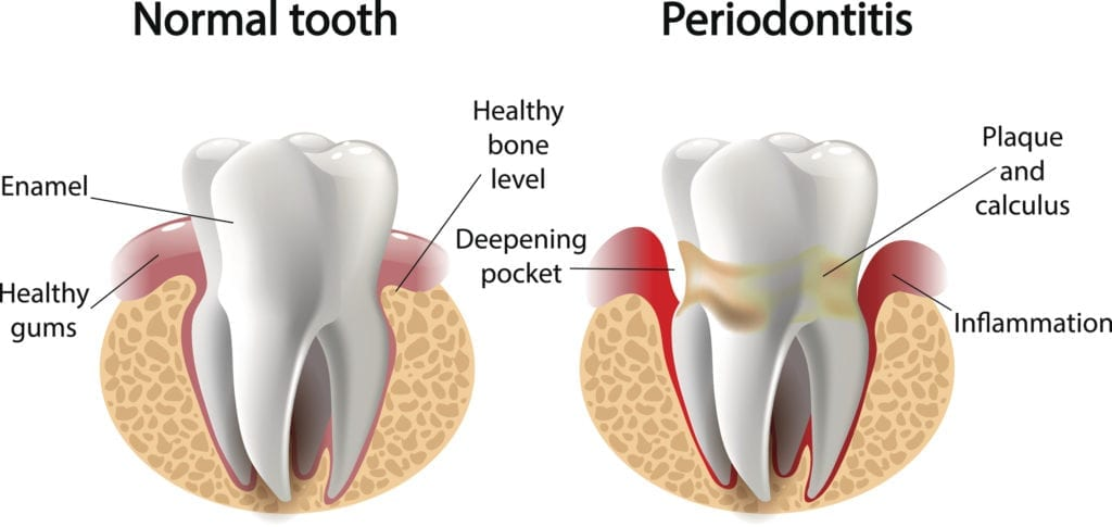 periodontal therapy for gum disease sterling va
